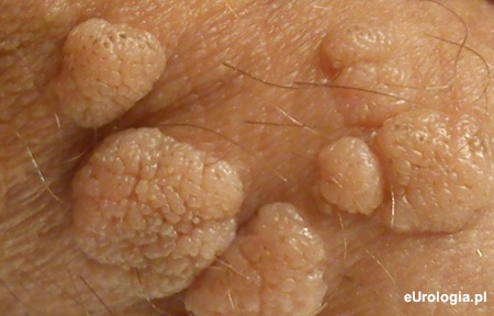 HPV és a Tévhitek - Dr. Csabai Zsolt PhD, Hpv szemölcsök meddig tartanak